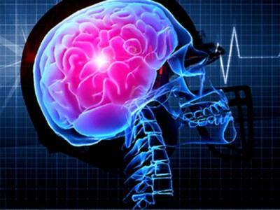 cérebro dos surdos