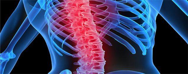 calcitonina-osso Osteogênese imperfeita - Causas e Tratamentos