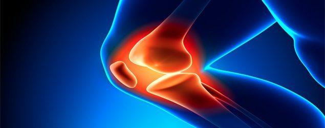 fluoreto-sódio-osso Osteogênese imperfeita - Causas e Tratamentos