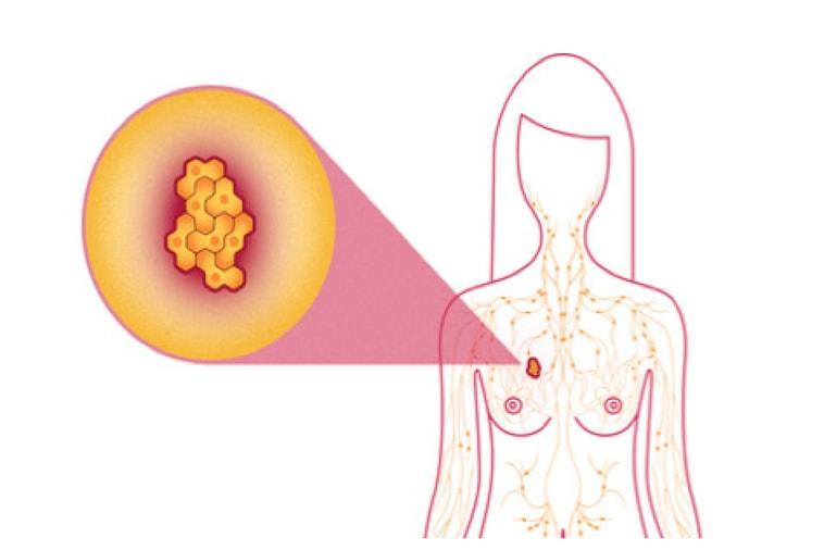 Câncer de Mama - Causas, Sintomas e Tratamentos