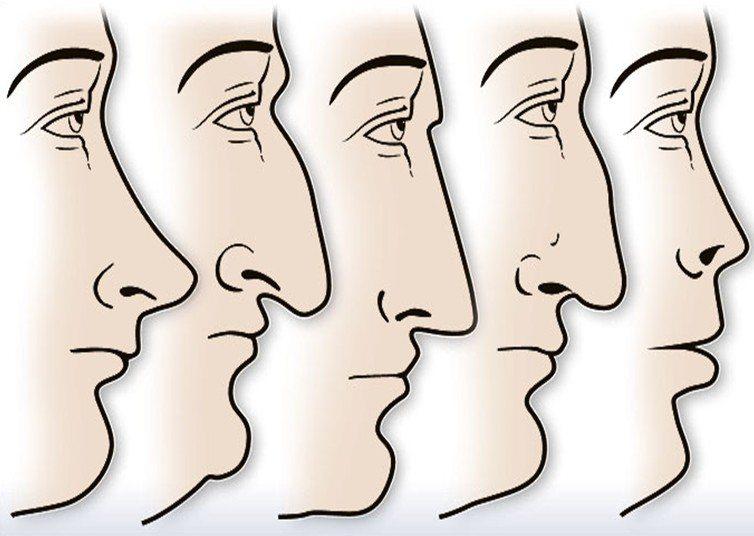 O que o formato do seu nariz diz sobre a sua personalidade