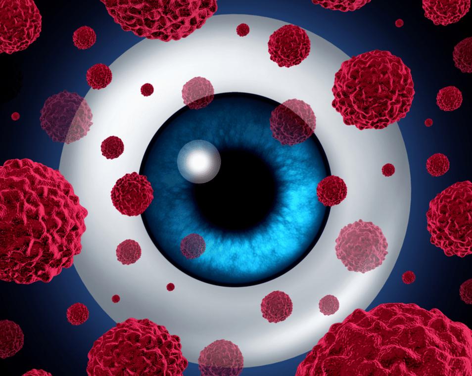 visão brocolis