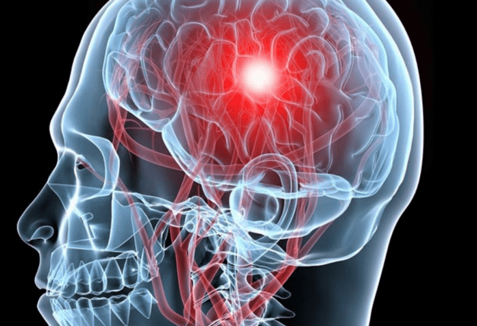 Saiba Tudo Sobre a Aneurisma Cerebral