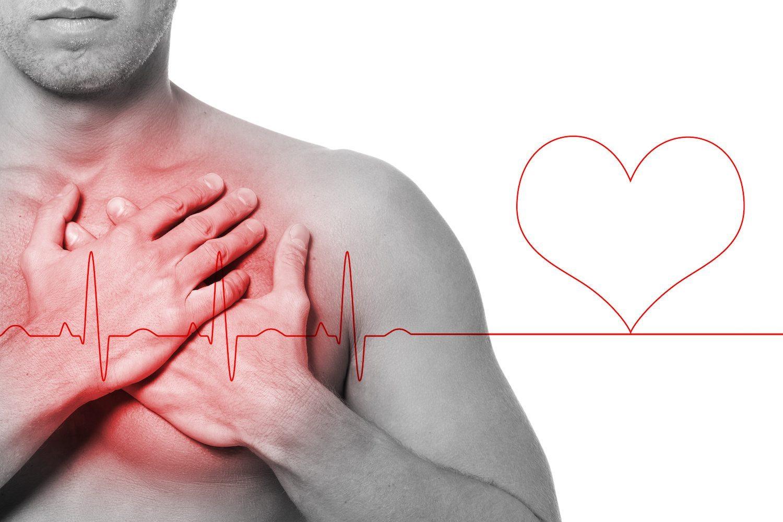 Resultado de imagem para O que é Arritmia cardíaca