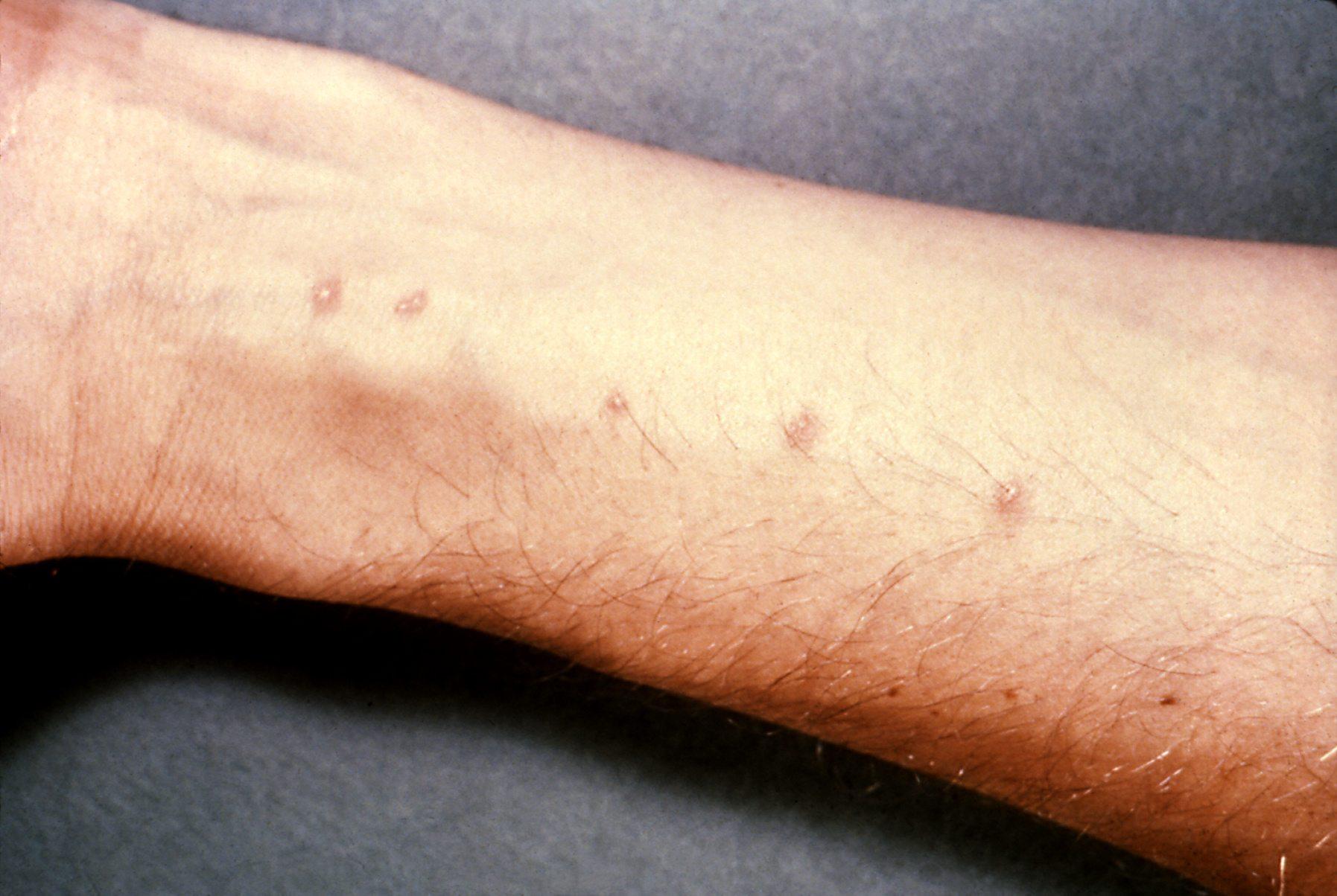 doenças tropicais esquistossomose