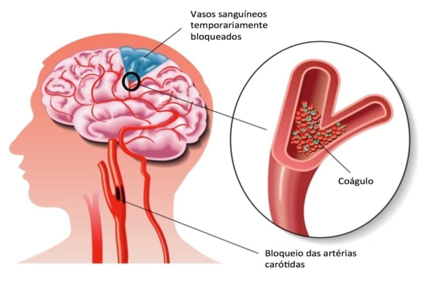 Saiba Tudo Sobre a Isquemia Cerebral