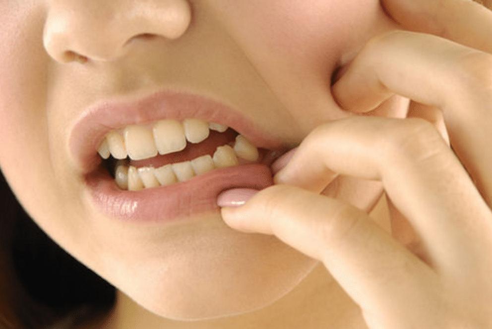 dente do siso 2