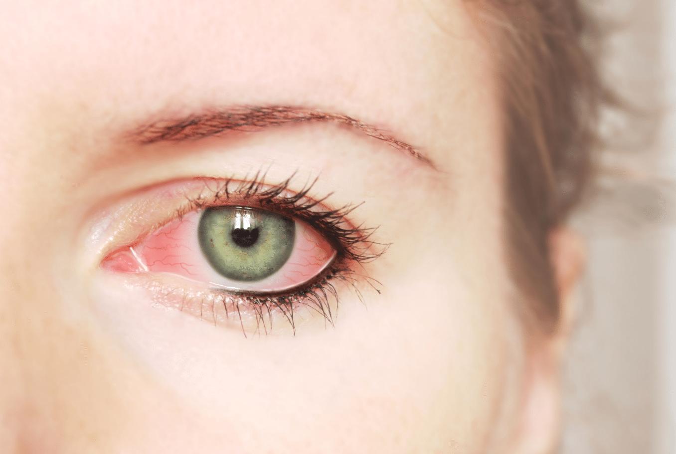 Principais causas da dor nos olhos