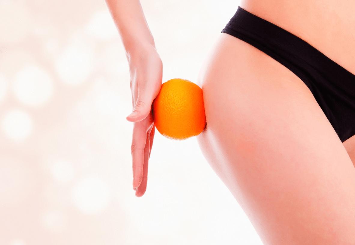 Celulite: 10 Exercícios e Dicas Caseiras para Eliminar a Celulite