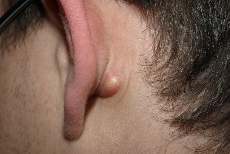 caroços na pele como prevenir?
