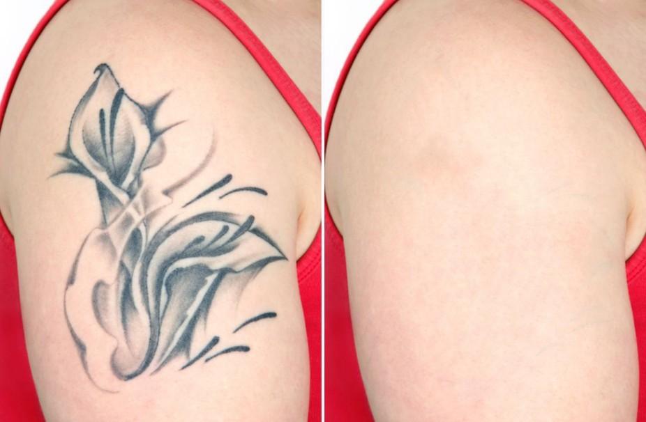 Remoção de Tatuagem: Métodos mais Eficientes e seus Preços