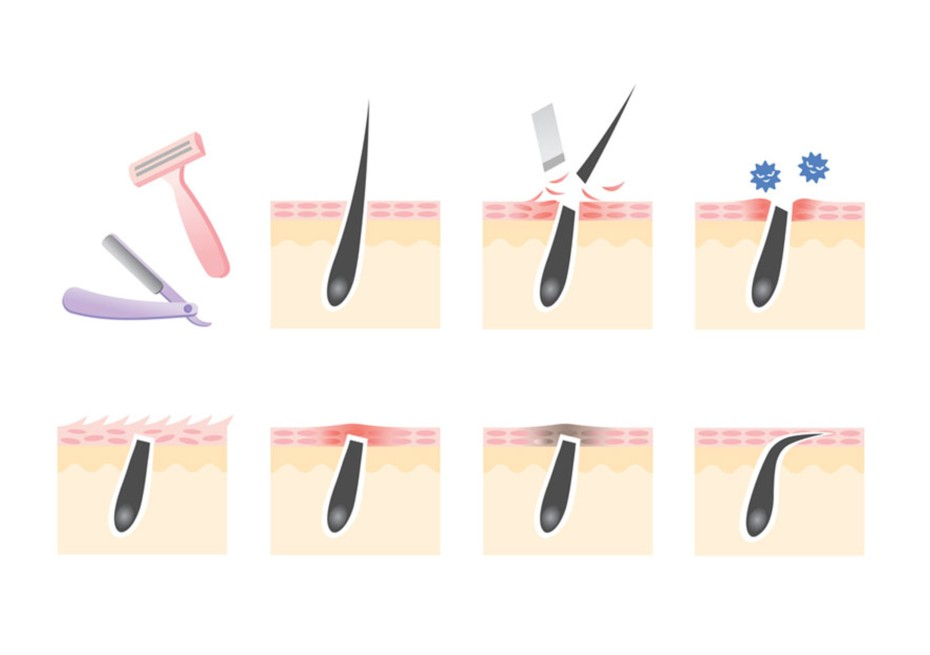 7 Passos para Remover Pelo Encravado Inflamado