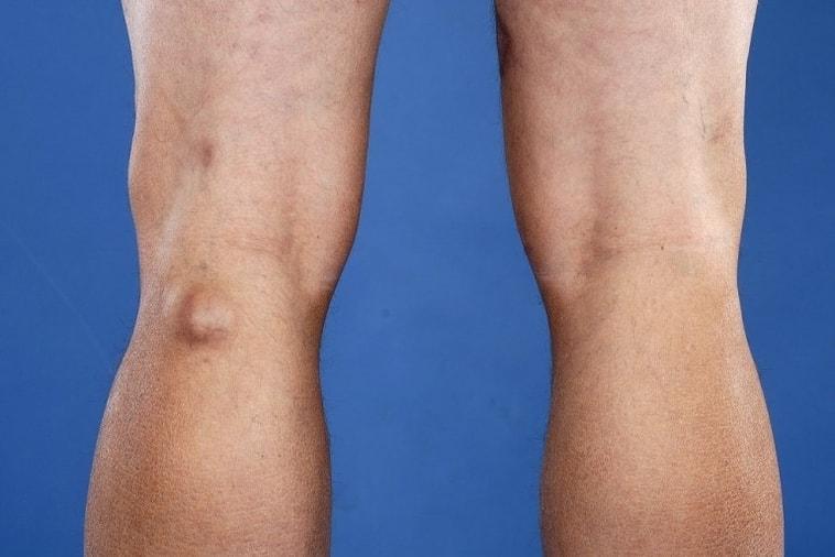 Cisto de Baker (no joelho), tratamento, roto, causas e cirurgia