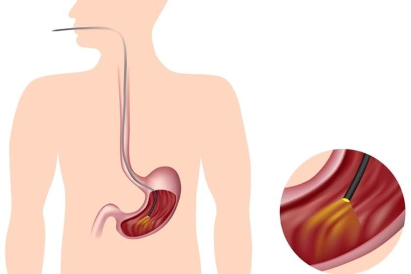 Saiba Tudo Sobre a Gastroscopia